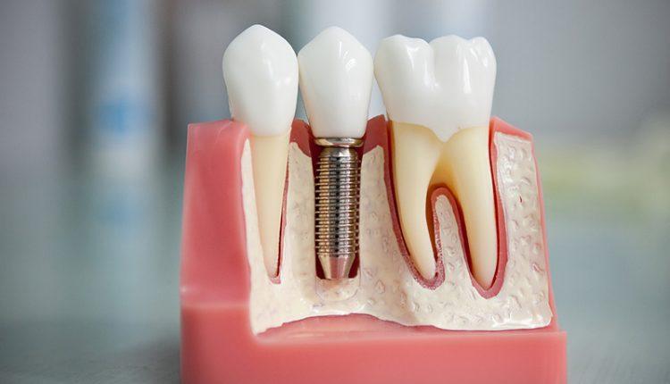Guide On Dental Implants2